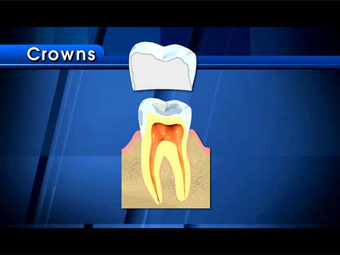 Bọc răng sứ cho phép cải thiện hàm răng ố vàng, xấu xí.