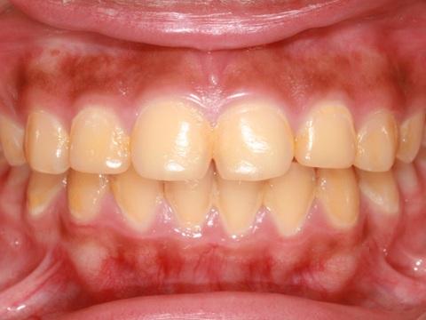10 triệu chứng răng miệng NGUY HIỂM bạn CẦN phải biết ngay lập tức 10