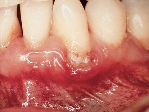 10 triệu chứng răng miệng NGUY HIỂM bạn CẦN phải biết ngay lập tức 3