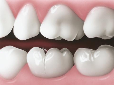 10 triệu chứng răng miệng NGUY HIỂM bạn CẦN phải biết ngay lập tức 9