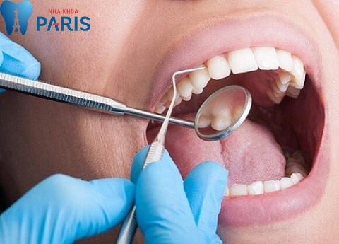 Tay nghề bác sĩ quyết định lấy cao răng có đau không?