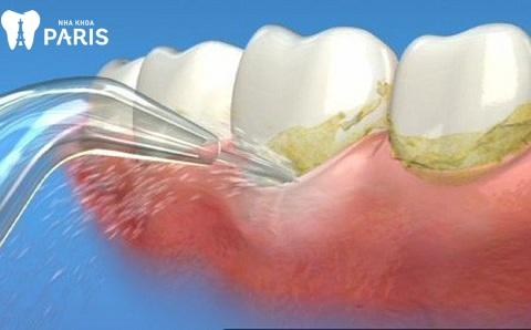 Máy thổi cát là nguyên nhân gây lấy cao răng đau nhức cho người bệnh.