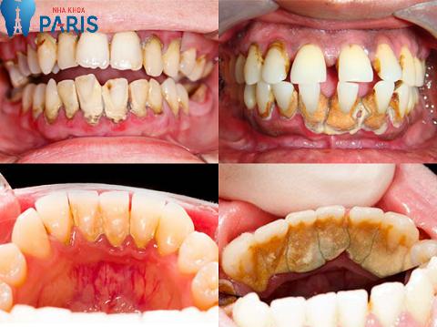Mức độ cao răng nặng nhẹ ảnh hưởng đến kết quả lấy cao răng có đau không?