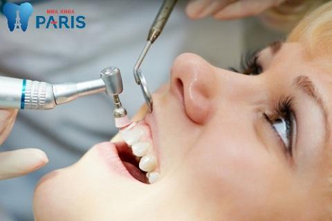 Máy lấy cao răng có đầu sóng siêu âm giống chiếc chổi quét sạch từng mảng cao răng cứng đầu.