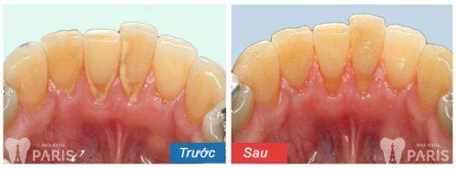 Kết quả khách hàng lấy cao răng tại nha khoa Paris