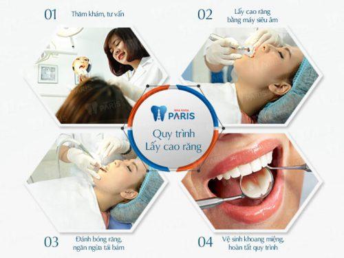Quy trình lấy cao răng tiêu chuẩn Pháp tại nha khoa Paris.