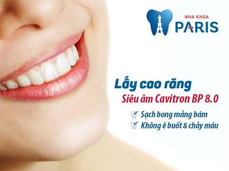 Công nghệ máy siêu âm lấy cao răng cho trẻ em đảm bảo an toàn, hiệu quả tuyệt đối