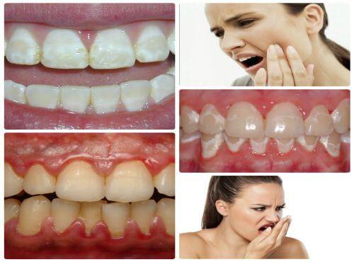 Một số tác hại không mong muốn nếu lạm dụng tẩy trắng răng tại nhà.
