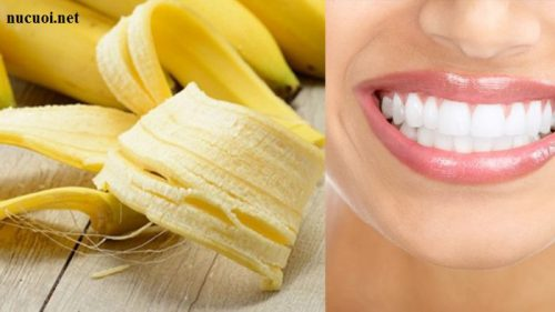 Cách tẩy trắng răng bằng bằng vỏ chuối 1
