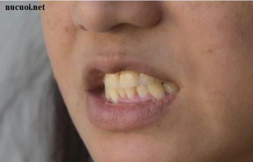 Cách tẩy trắng răng bằng vỏ chuối 5