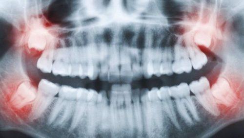 Chụp X quang răng giá bao nhiêu tiền? tại sao cần chụp x quang răng