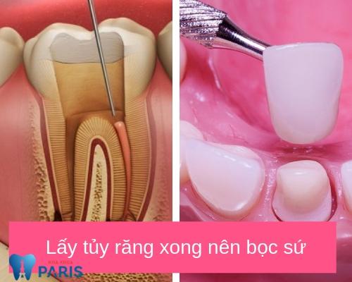 Lấy tủy răng có nguy hiểm không? Nên bọc sứ
