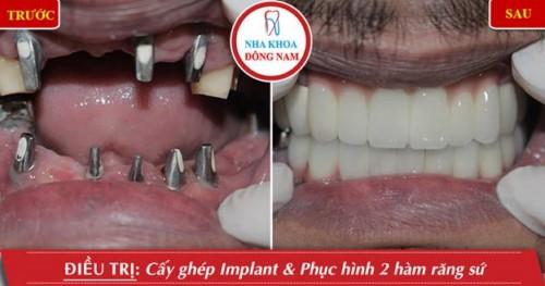 Dịch vụ chủ đạo của nha khoa Đông Nam là Cấy ghép Implant