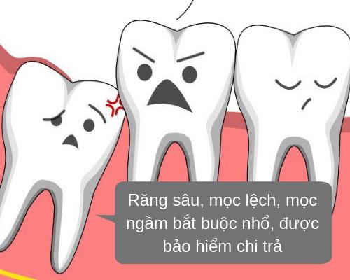 Nhổ răng khôn có được bảo hiểm không? trường hợp áp dụng
