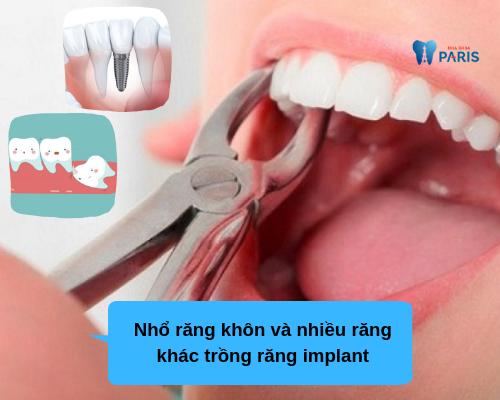 Nhỏ răng khôn làm nhỏ mặt không