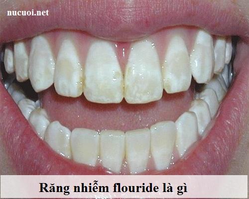 Răng nhiễm flour là gì?