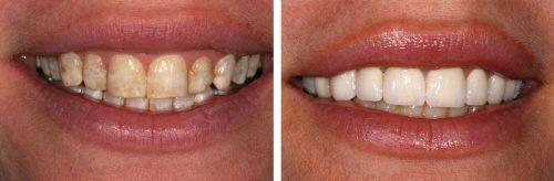 Tẩy trắng cho răng nhiễm flour