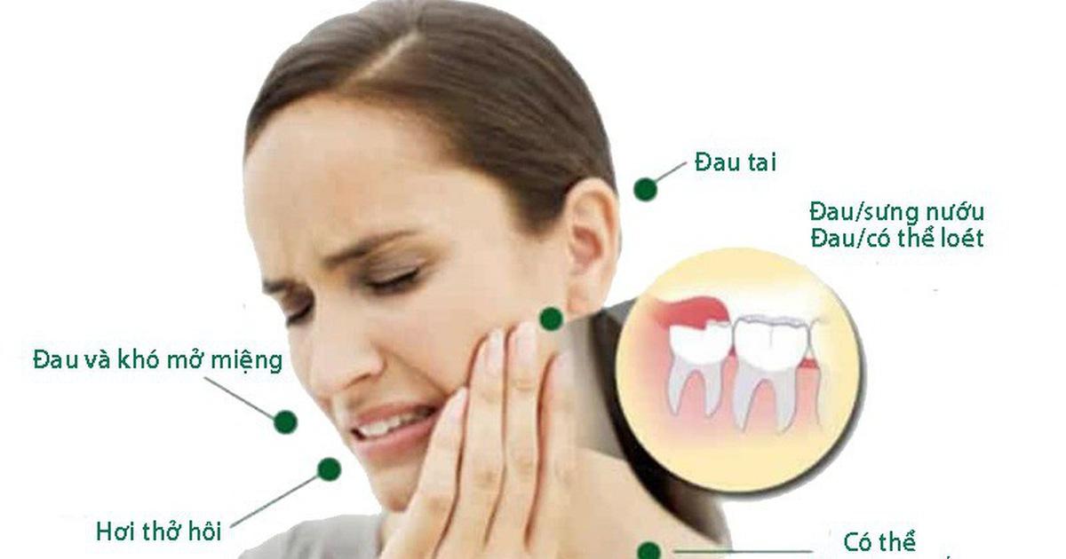 Mọc răng khôn gây nên biến chứng gì?