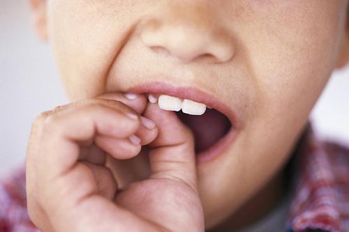 Lưu ý quan trọng trong độ tuổi mọc lại răng của trẻ.