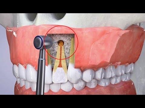 Các trường hợp không được phẫu thuật cắt chóp răng