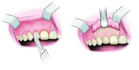 Những biến chứng có thể xảy ra khi phẫu thuật cắt chóp răng