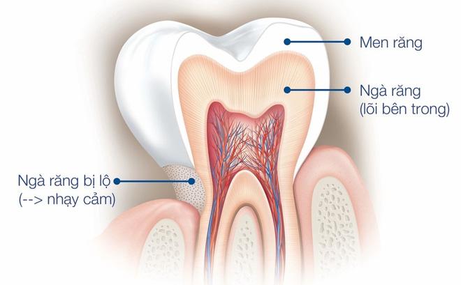 Ngà răng bị lộ do tụt nướu, mòn men răng khiến răng nhạy cảm ê buốt hơn