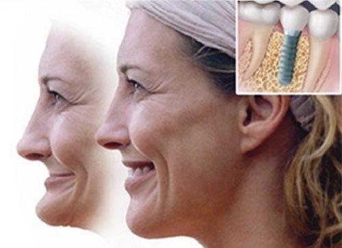 Khắc phục triệt để bằng cấy ghép implant