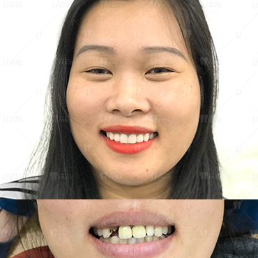 khách hàng đã cấy ghép răng Implant tại nha khoa Paris