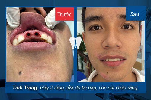 trồng răng implant 4s