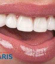 bọc răng sứ venus