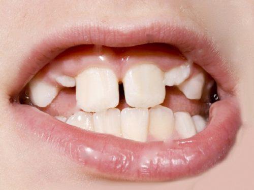 Mọc răng khểnh do thay răng sữa không đúng thời gian