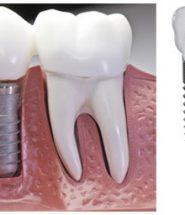 Giá trồng răng implant Hàn Quốc
