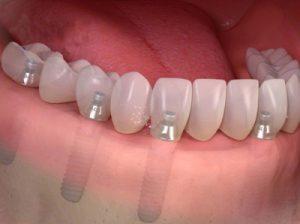 trồng răng nguyên hàm bao nhiêu tiền