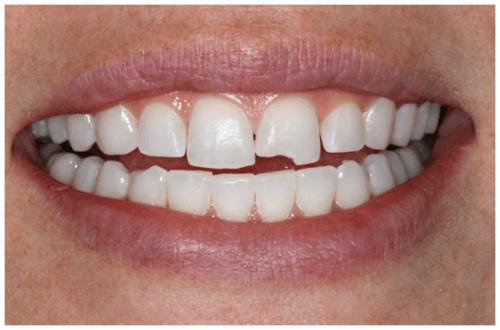 bọc răng sứ cho răng cửa bị mẻ