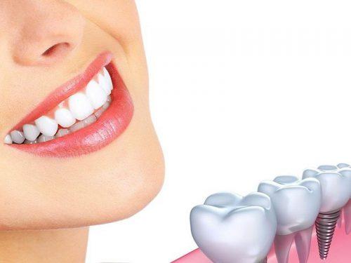 Răng Implant tồn tại bao lâu?