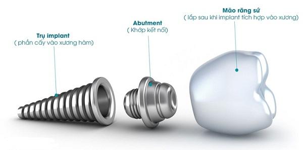 abutment implant là gì