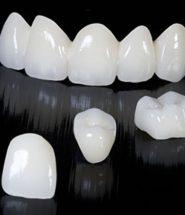 răng sứ emax press