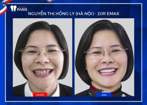 Khách hàng bọc răng sứ Emax tại nha khoa chi nhánh Hà Nội