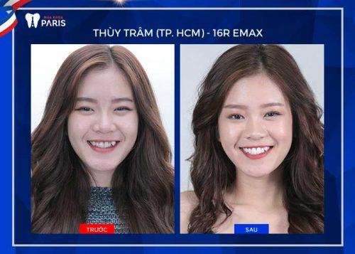 Khách hàng bọc răng sứ Emax