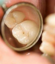 bị sâu răng nên làm gì