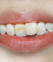 bọc răng sứ cho răng cửa mọc lệch