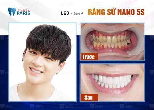Image result for review boc rang su