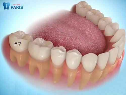 Răng số 7 bị lung lay