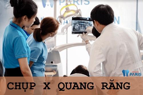 Quy trình điều trị tủy răng của Bộ Y tế