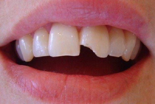 răng sứt mẻ có hàn được không
