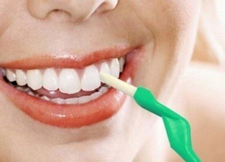 Một số lưu ý khi thực hiện tẩy trắng răng bằng máng tại nhà