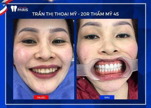 răng hạt lựu