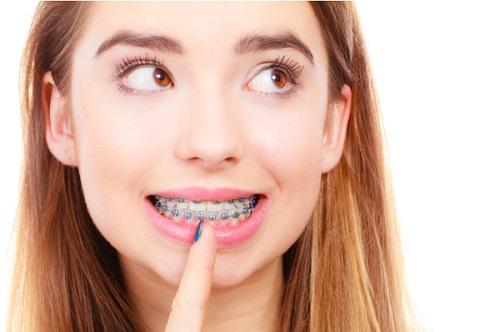 Niềng răng xong có đẹp hơn không?
