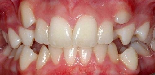 răng mọc chồi