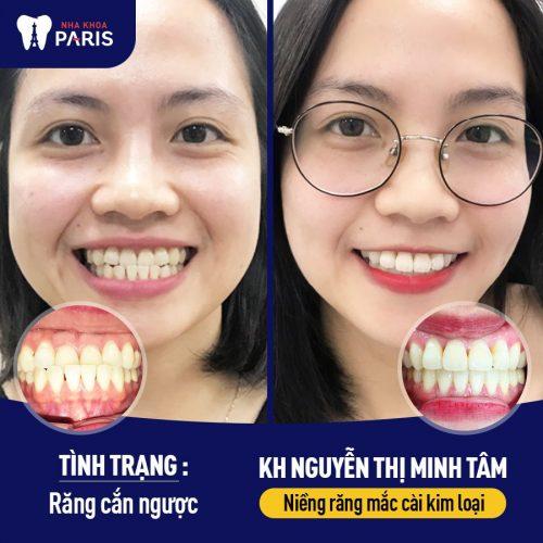 niềng răng có làm mũi cao lên